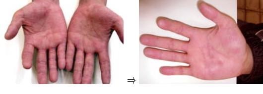 接触性皮膚炎