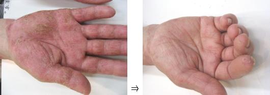 掌蹠膿疱症(しょうせきのうほうしょう)②