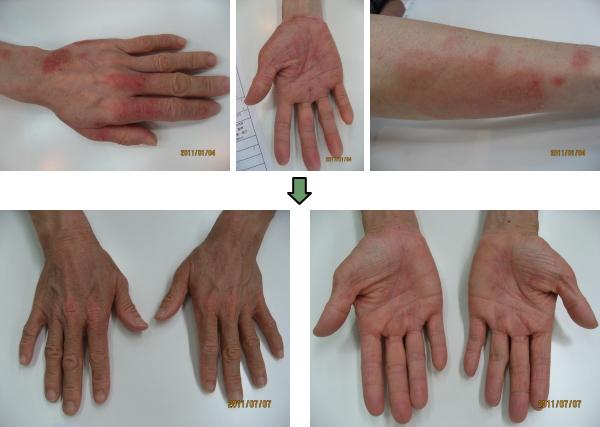 掌蹠膿疱症(しょうせきのうほうしょう)④