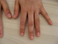 アトピー性皮膚炎 改善例 3ヵ月後